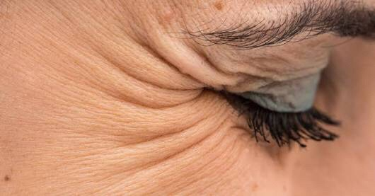Crow Feet - The ageing sign - Botox